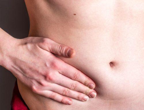 Hernienchirurgie – Bruchoperationen