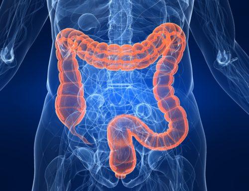 Darmspiegelung / Koloskopie – Früherkennung von Darmkrebs verbessern